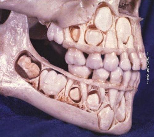 el-craneo-de-un-nino-antes-de-perder-sus-dientes-de-leche.jpg